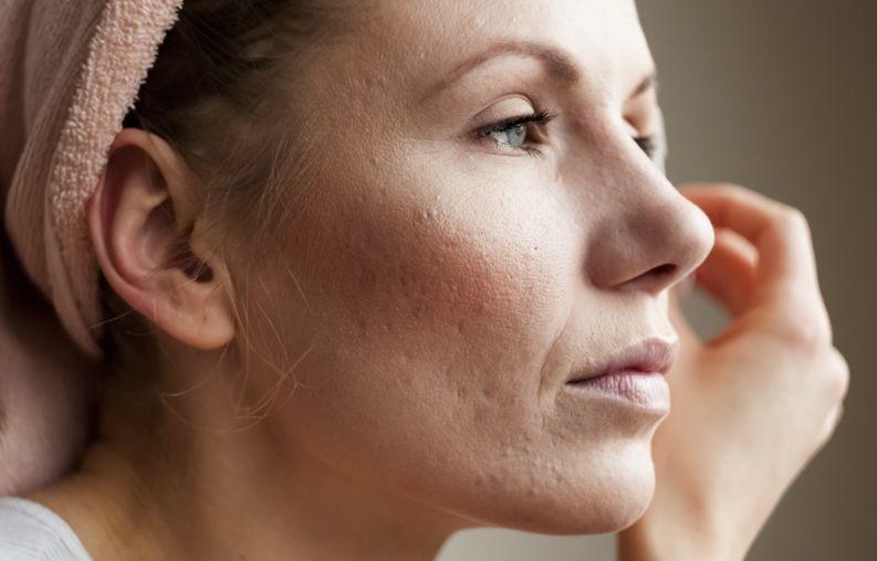 Blizny po trądziku – jak powstają, jak się ich pozbyć i jak im zapobiegać?