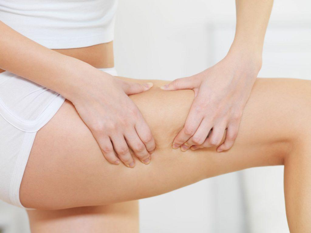 Sposoby na cellulit. Na czym polega biomezoterapia?