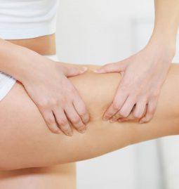 biomezoterapia na cellulit