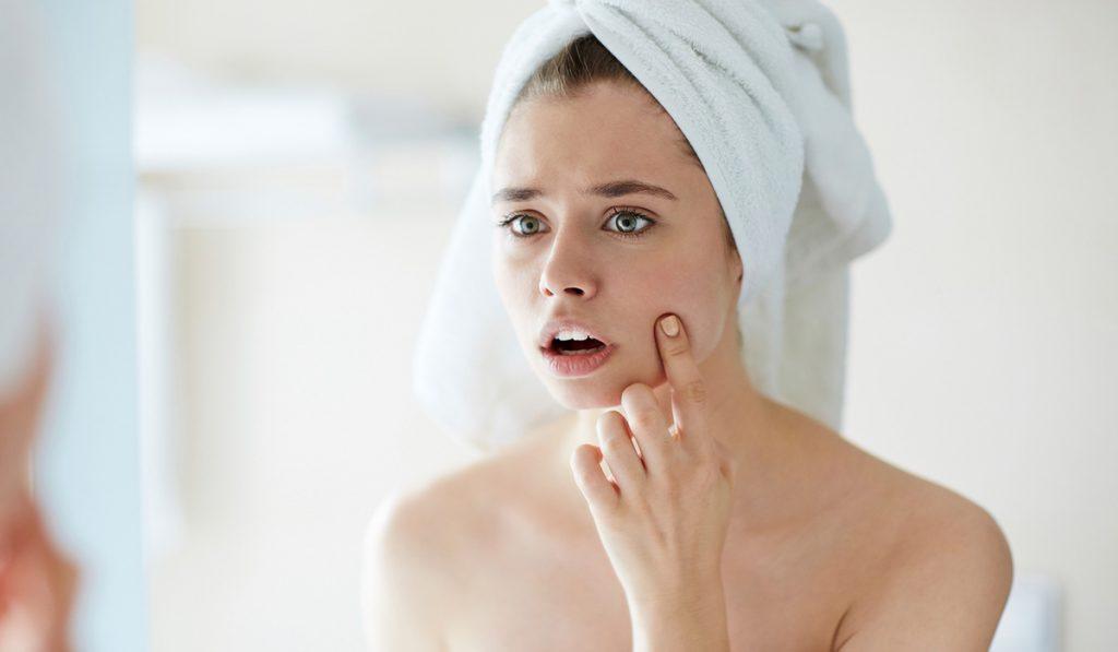 Trądzik hormonalny – rozpoznanie, objawy i leczenie