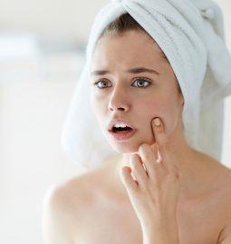 co powoduje trądzik hormonalny?