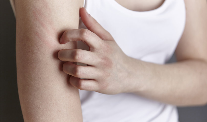 Kosmetyki dla alergików, czyli hipoalergiczne: skład i właściwości