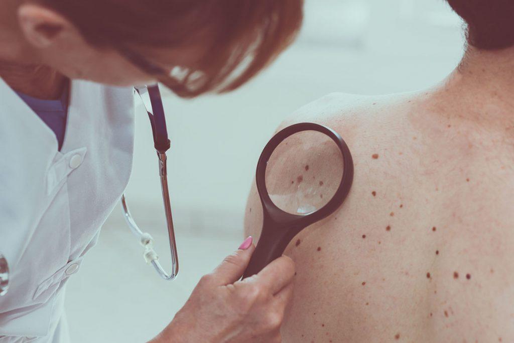 Czerniak – fakty i mity o raku skóry